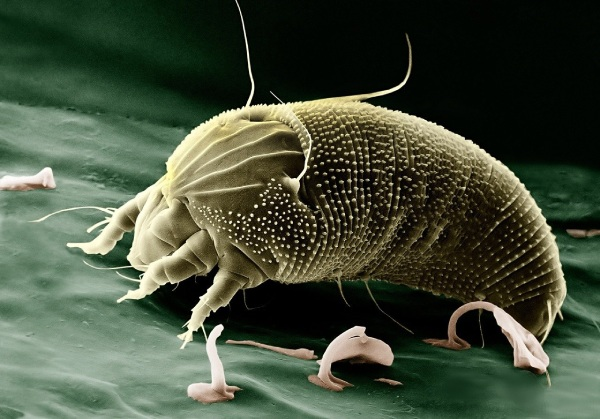 Dust mites in unfiltered indoor air are common source of allergies.